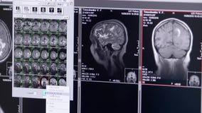 Cheminement d'un balayage de CT avec sur le fond foncé clips vidéos