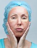 Chemische Schale. Portrait an einem sonnigen Tag lizenzfreies stockbild