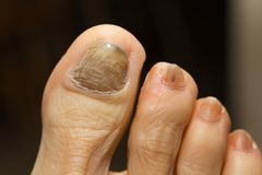 Chemotherapy Fungus Toenail Royalty Free Stock Photography