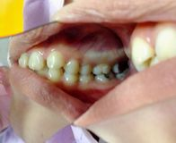 Chequeo decaído de los dientes fotografía de archivo libre de regalías