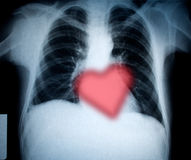 Chest and heart. Chest xray and heart for valentines holiday royalty free stock photo