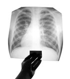 Chest X-ray. Image in hand royalty free stock photography