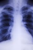 Chest x-ray. Male chest x-ray with a blue hue showing skeleton details stock photo