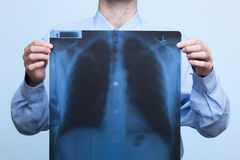 Chest x-ray. Man with his bellows (chest) x-ray, focused on x-ray stock image