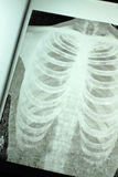 Chest X-Ray. Old Human Chest X-Ray stock photography