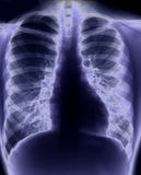 Chest x-ray. Showing lungs and heart royalty free stock photo