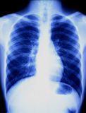 Chest X-ray. With a blue hue, demonstrating the heart, ribs and lungs stock photos