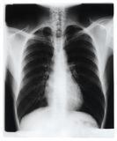 Chest x-ray. X-ray image of human chest Stock Photography