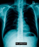 Chest x-ray royalty free stock images