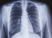 Chest x-ray. Close up of a chest x-ray royalty free stock photography