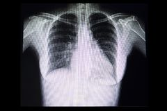 a chest x ray film of a patient with cardiomegaly stock photo