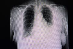 Cardiomegaly and left pleural effusion. A chest x-ray film of a patient with cardiomegaly and left pleural effusion. Cephalization of pulmonary blood flow stock images