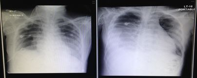 Chest x-ray. Film chest pneumonea royalty free stock image