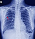 Chest x-ray Fracture right posterior 6th rib and possible fracture lateral aspect of left 9th rib. Normal heart size.No definite active pulmonary infiltration royalty free stock photos