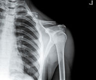 Chest X Ray with fractured clavicle Stock Images