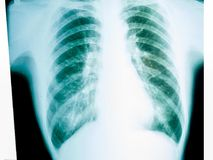 Chest X-ray. X-ray of a human male chest royalty free stock image