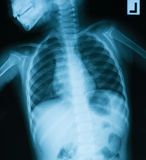 Chest X-ray image, AP view. Asian young boy Royalty Free Stock Photos