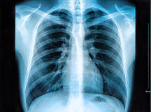 Chest X-ray Image. X-Ray image of the human chest stock photos