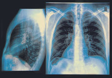 Chest X-ray Image Stock Image