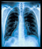 Chest X-ray Image Stock Images
