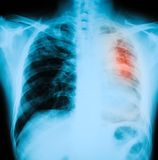 Chest X-ray image, PA upright position. Show lung infection in the left side Royalty Free Stock Photography
