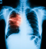 Chest X-ray image, PA upright position. Shows lung infection Royalty Free Stock Photos