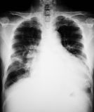Chest X-ray image. stock image