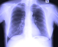 Chest x-ray of mature woman. Chest x-ray of woman royalty free stock images