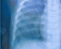 Chest x-ray. Medical science background. in blue tone royalty free stock photo