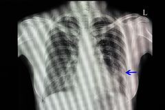 Chest x-ray of a patient with pneumonia. A chest x-ray of a patient with pneumonia with left lower lung infiltration Stock Photography