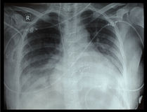 Chest x-ray. Of the patient after surgery royalty free stock photography