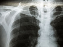 Chest x-ray show alveolar infiltration. Pulmonary Tuberculosis  TB  : Chest x-ray show alveolar infiltration at both lung due to mycobacterium tuberculosis Royalty Free Stock Photos