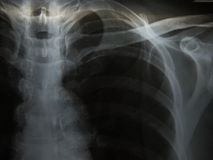 Chest x-ray show alveolar infiltration. Pulmonary Tuberculosis  TB  : Chest x-ray show alveolar infiltration at both lung due to mycobacterium tuberculosis Royalty Free Stock Images