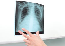 Chest X-ray to negatoscope. Stock Photos