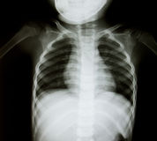Chest x-ray of young boy  Royalty Free Stock Image