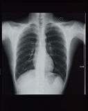 Chest X-rays Royalty Free Stock Photos