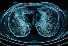 Chest X-rays under 3d image royalty free illustration