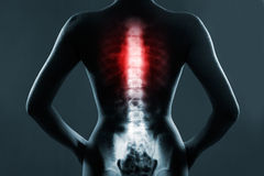 The chest spine is highlighted by red colour Royalty Free Stock Photography