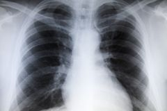 Chest x-ray Royalty Free Stock Photography