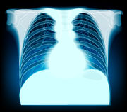 Chest x-ray. Stock Image