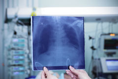 Chest x-ray against the backdrop of a hospital ward. Stock Photos