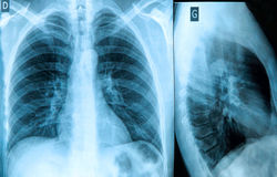 Chest X-ray Image Royalty Free Stock Photos