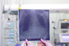 Chest x-ray image in ICU Royalty Free Stock Image