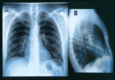 Chest X-ray Image Stock Photo