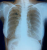 Chest X-ray image of healthy woman Royalty Free Stock Images