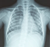 Chest x-ray, lungs, of young girl Stock Photography