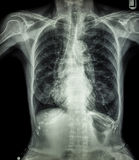 Chest X-ray of old patient ( calcification at rib , trachea , bronchus ) Royalty Free Stock Photography