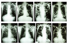 Chest x-ray Pulmonary tuberculosis Royalty Free Stock Photography