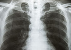 Chest x-ray show alveolar infiltration Stock Image