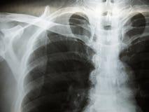Chest x-ray show alveolar infiltration Royalty Free Stock Photos